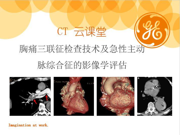 胸痛三联征检查技术及急性主动脉综合征的影像学评估
