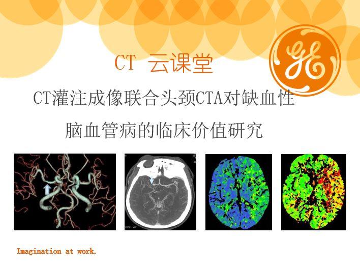 CT灌注成像联合头颈CTA对缺血性脑血管病的临床价值研究