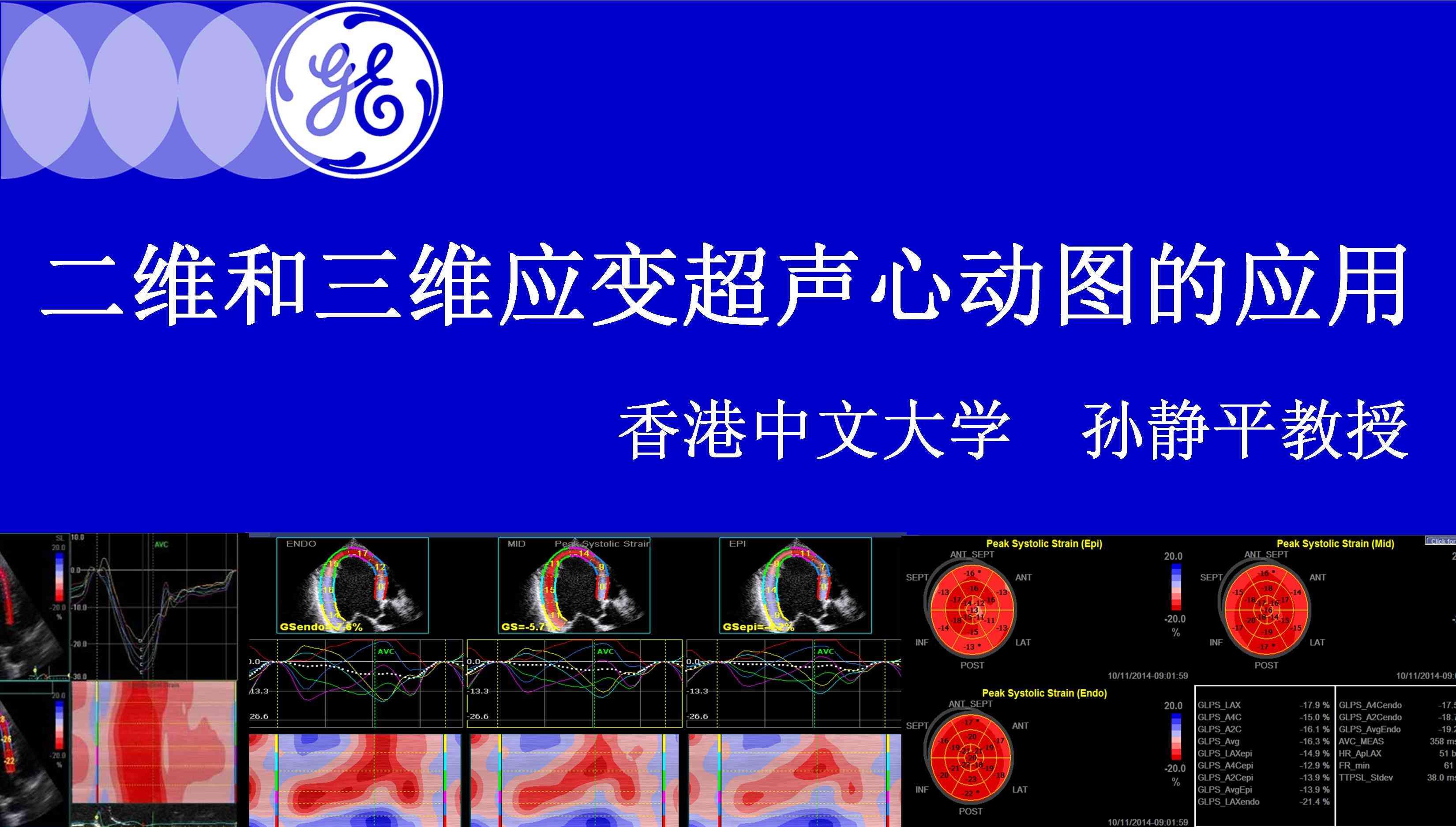 二维和三维应变超声心动图的应用