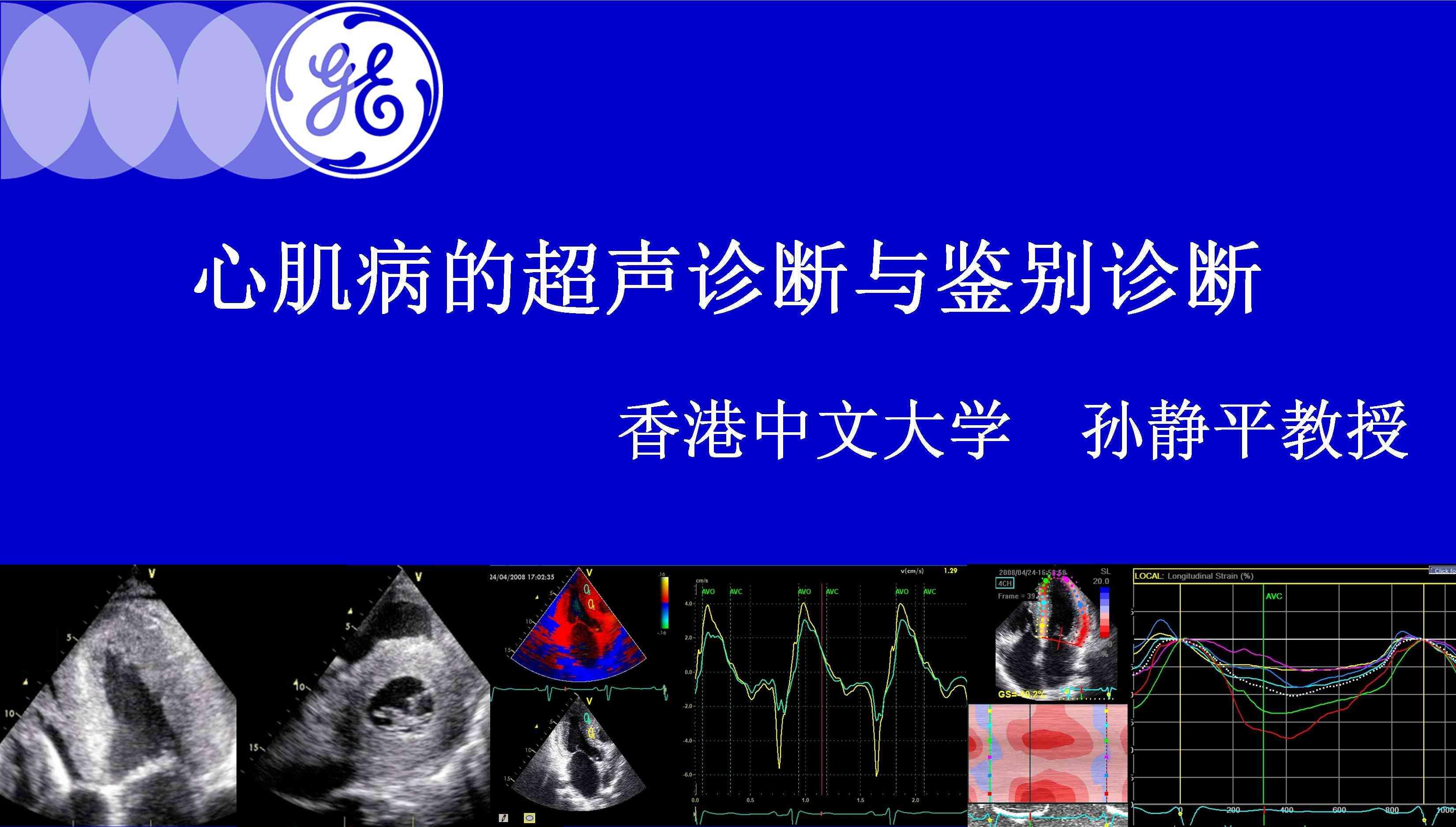 心肌病的超声诊断与鉴别诊断