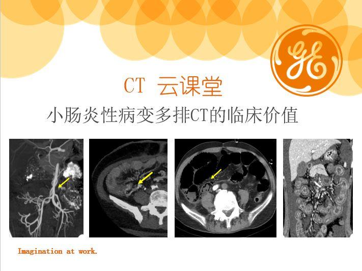 小肠炎性病变多排CT的临床价值