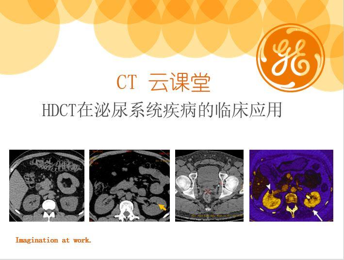 HDCT在泌尿系统疾病的临床应用
