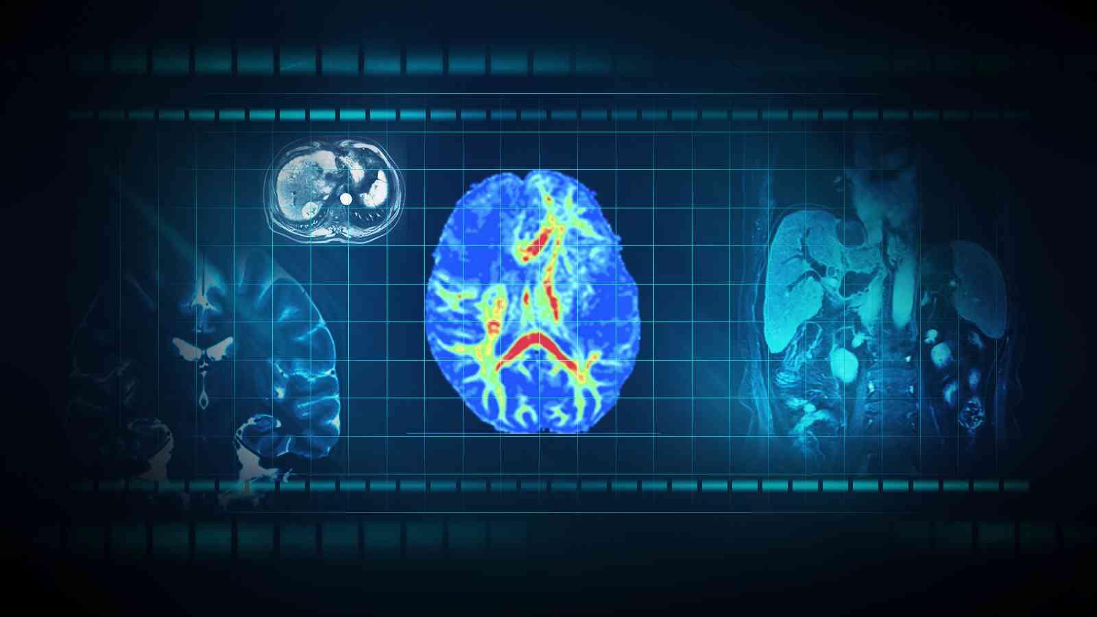脑微小血管病的影像学