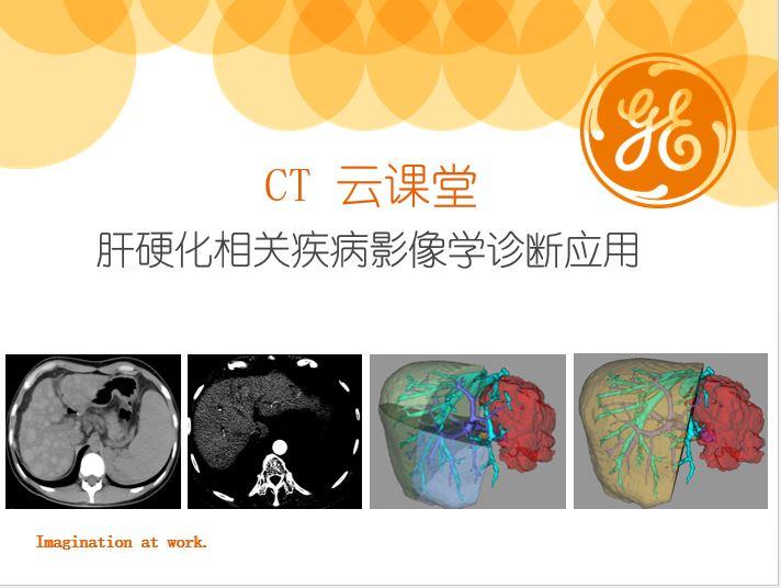 肝硬化相关疾病影像学诊断应用