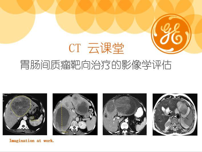 胃肠间质瘤靶向治疗的影像学评估