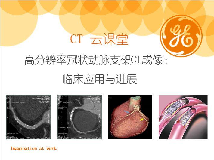 高分辨率冠状动脉支架CT成像:临床应用与进展