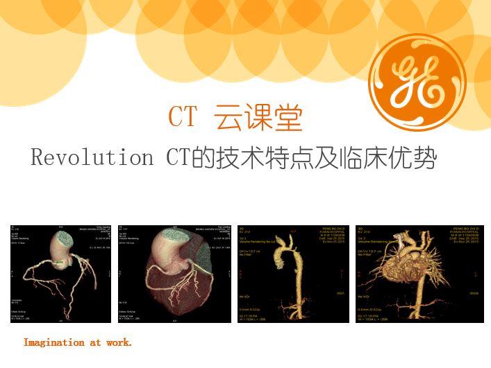 Revolution CT的技术特点及临床优势