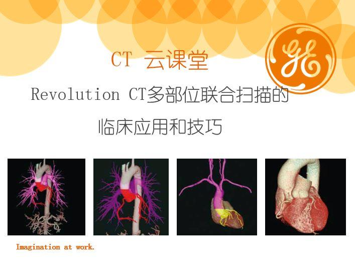 Revolution CT多部位联合扫描的临床应用和技巧