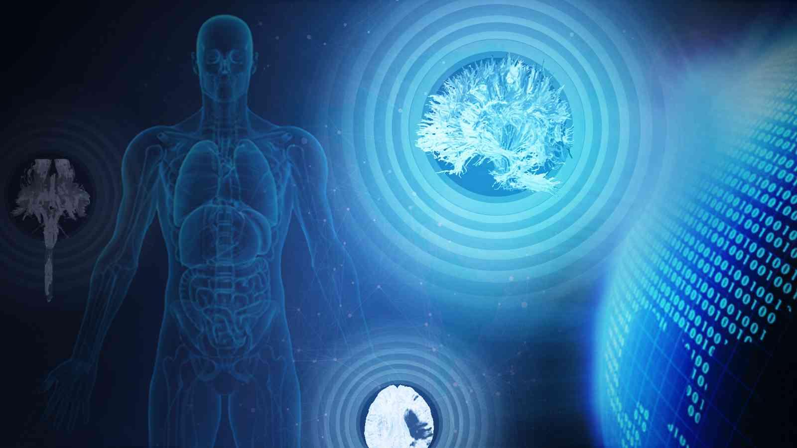 中枢神经系统疾病常见影像征象分析
