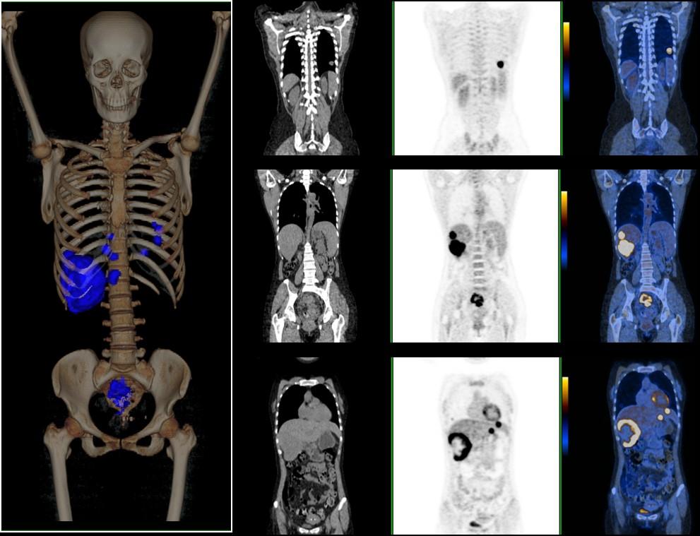 PET/CT直肠癌术后复发及转移探测