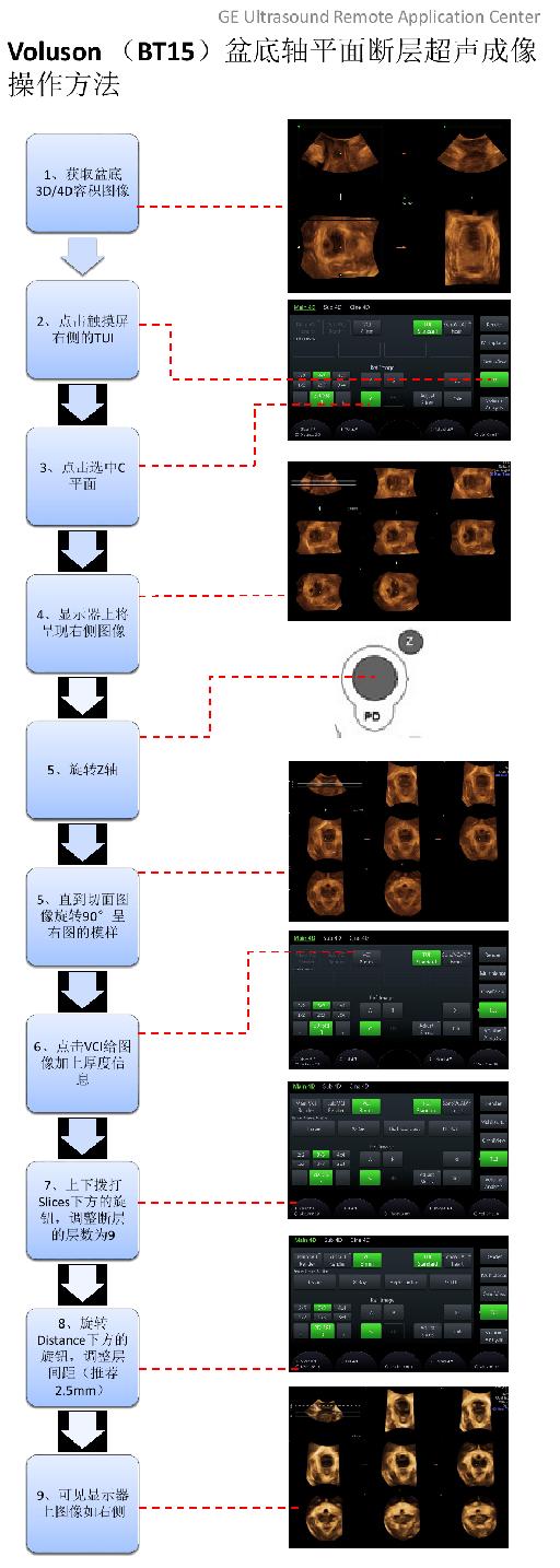 Voluson(BT15) 盆底轴平面断层超声成像操作方法