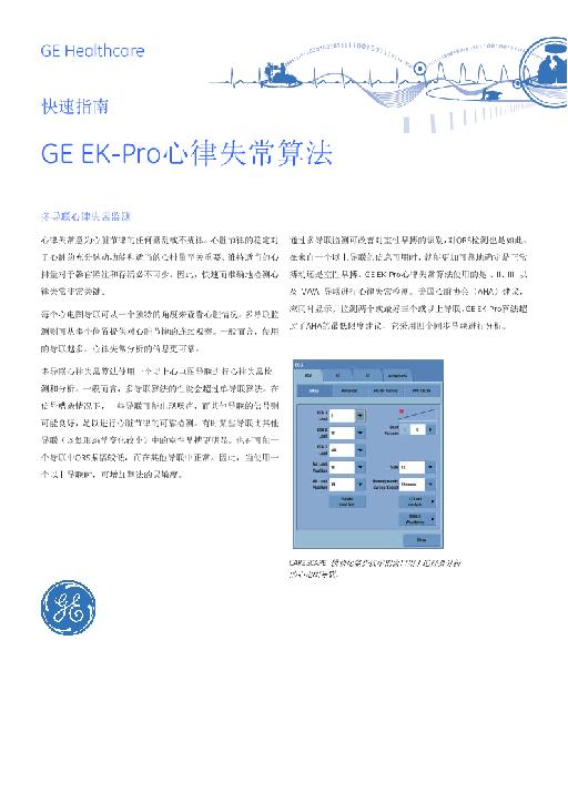 GE EK-Pro心律失常算法